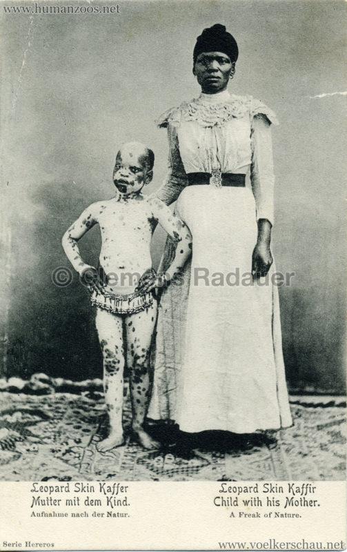 Leopard Skin Kaffer - Mutter mit dem Kind